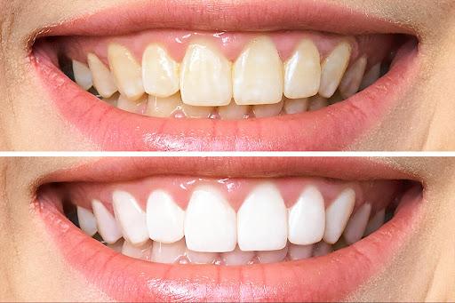 teeth whitening north parramatta